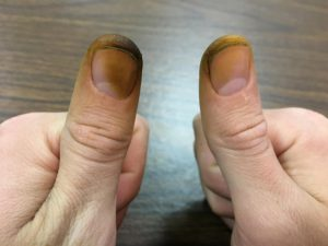 A pair of thumbs stained brown from digging through a few walnut husks. Be sure to wear gloves. The stain is difficult to remove and can last over a week. By Cody Berkebile